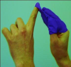 Glove Removal 5