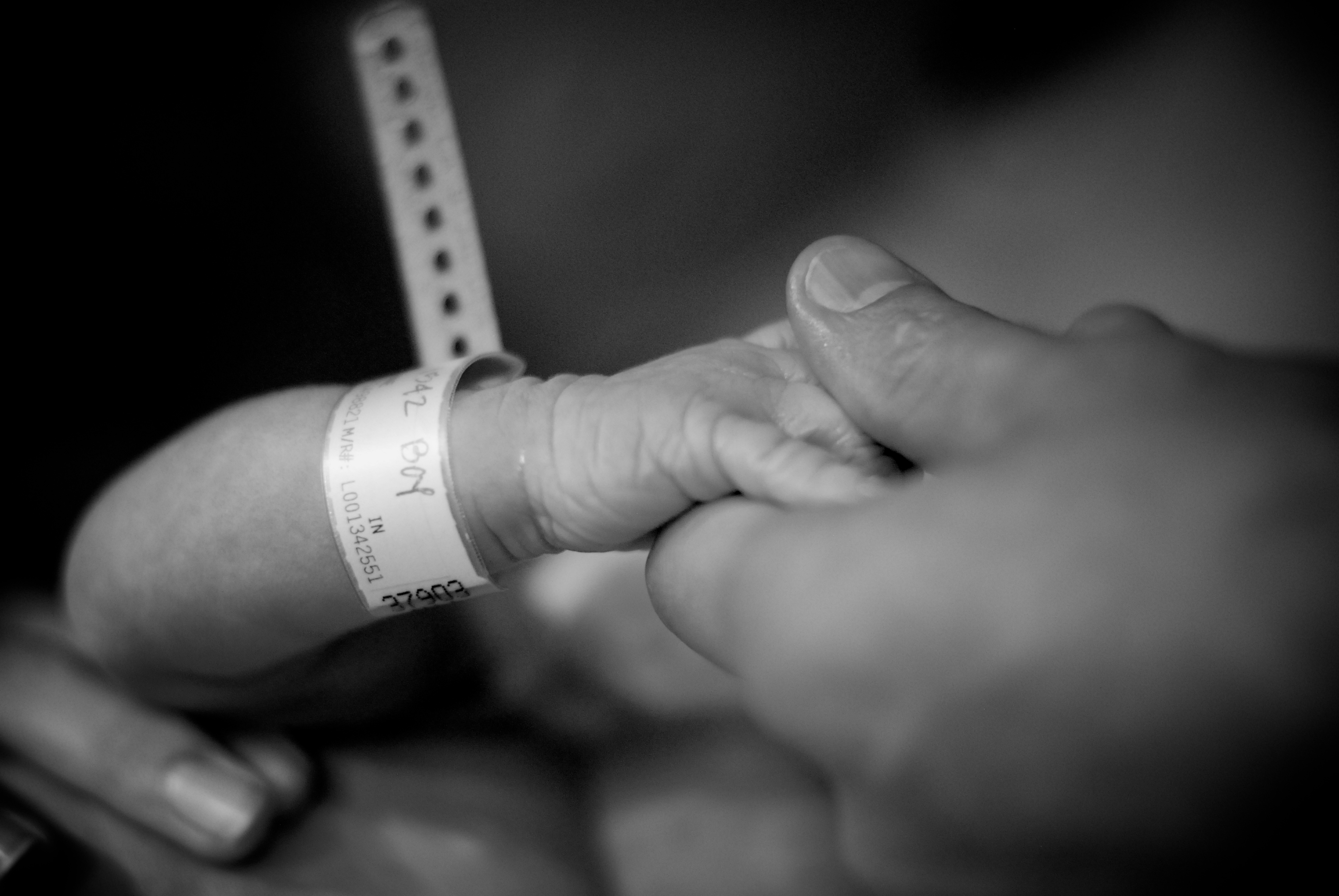 What Similarities And Differences Lie Between Stillbirths And Miscarriages?