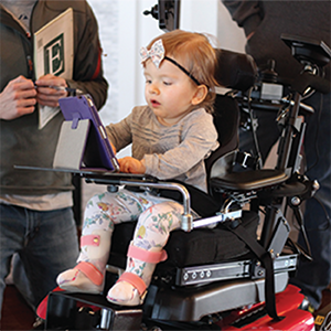 Emmeline has Spinal Muscular Atrophy