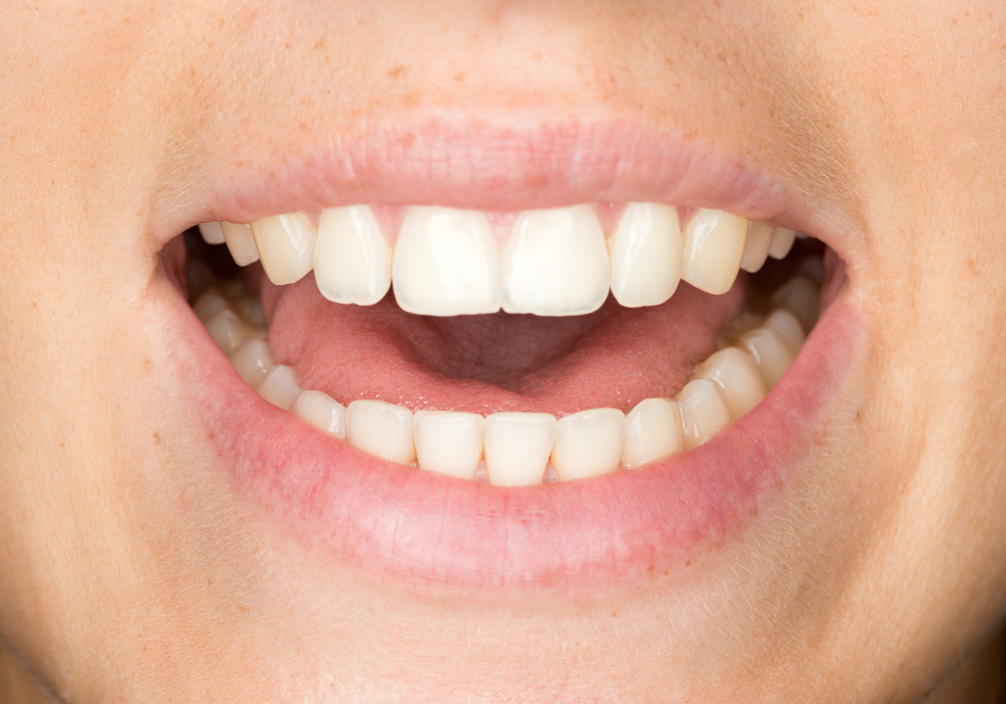 stock photo of a human smile